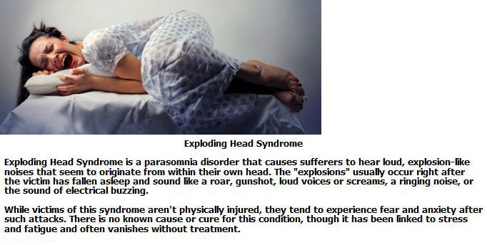 Weirdest Medical Syndromes (10 pics)