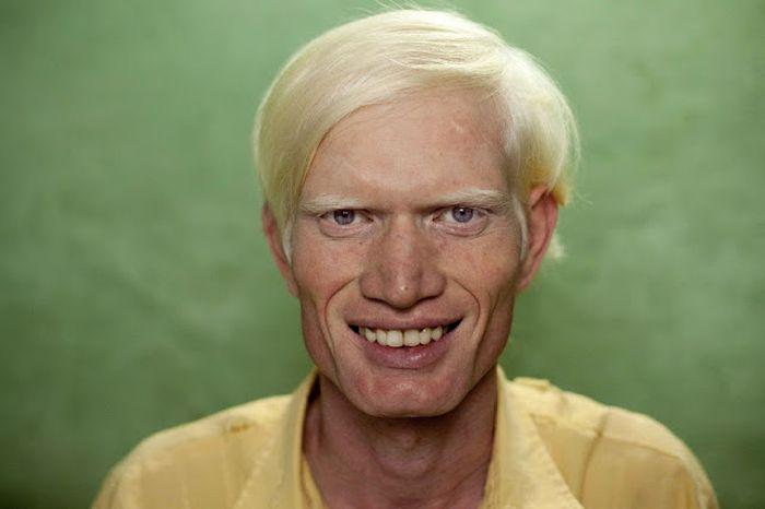 World's Biggest Albino Family (17 pics)