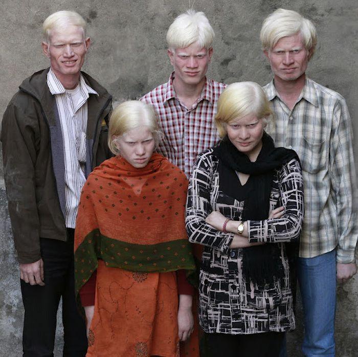 عائلة ألبينو