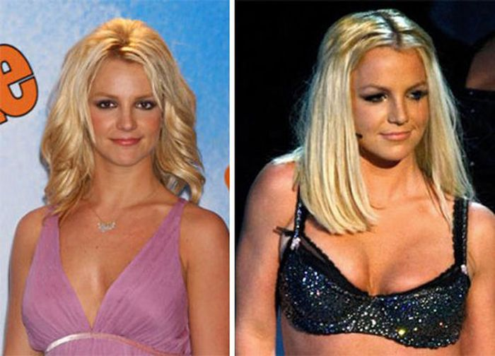 Celebs with Fake Breasts (14 pics)