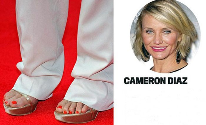 Celebrities with Ugly Feet (15 pics)