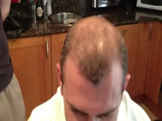 Amazing Gadget For Bald People