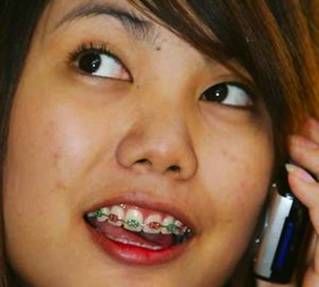 Braces Are New Trend in Asia (8 pics)