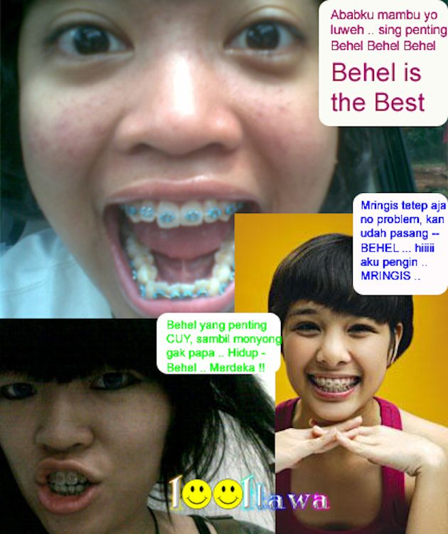 Braces Are New Trend in Asia (8 pics)