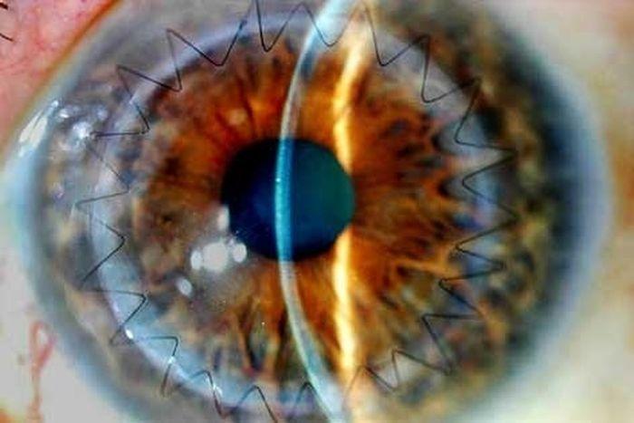 Eyeball Stitches (10 pics)