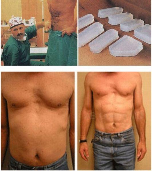 The Worst Body Mods (40 pics)
