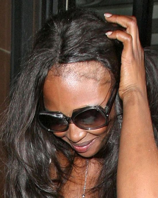 What Happened to Naomi Campbell' Hair? (9 pics)