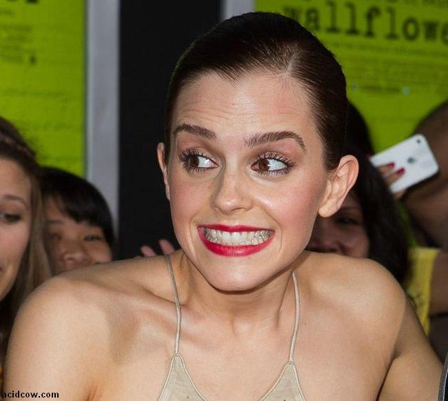Emma Watson Nip Slip (3 pics)