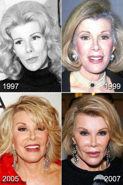 Plastic Surgery Disaster (42 pics)
