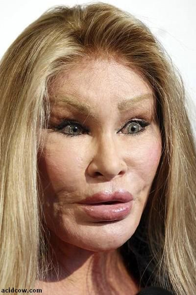 Plastic Surgery Disaster (42 pics)