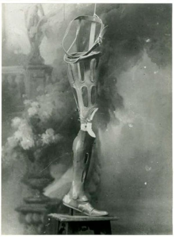 Prosthetics of the Past (21 pics)