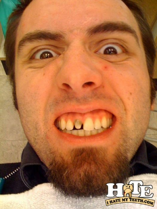 Bad Teeth (27 pics)