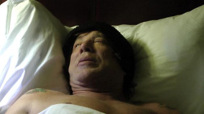 Mickey Rourke After a Plastic Surgery (7 pics)