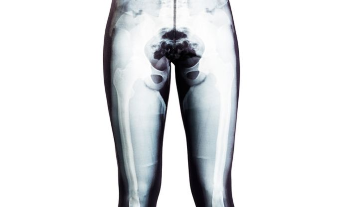 Yoga Pants with X-Ray Picture (8 pics)