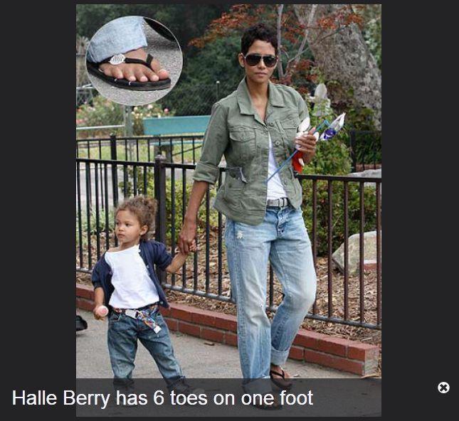 Celebrities and Their Deformities (31 pics)