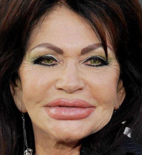 Terrible Plastic Surgery (40 pics)