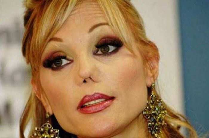 Terrible Plastic Surgery (40 pics)