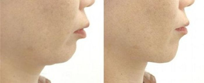 How to Remove Your Double Chin in the Japanese Way (3 pics)