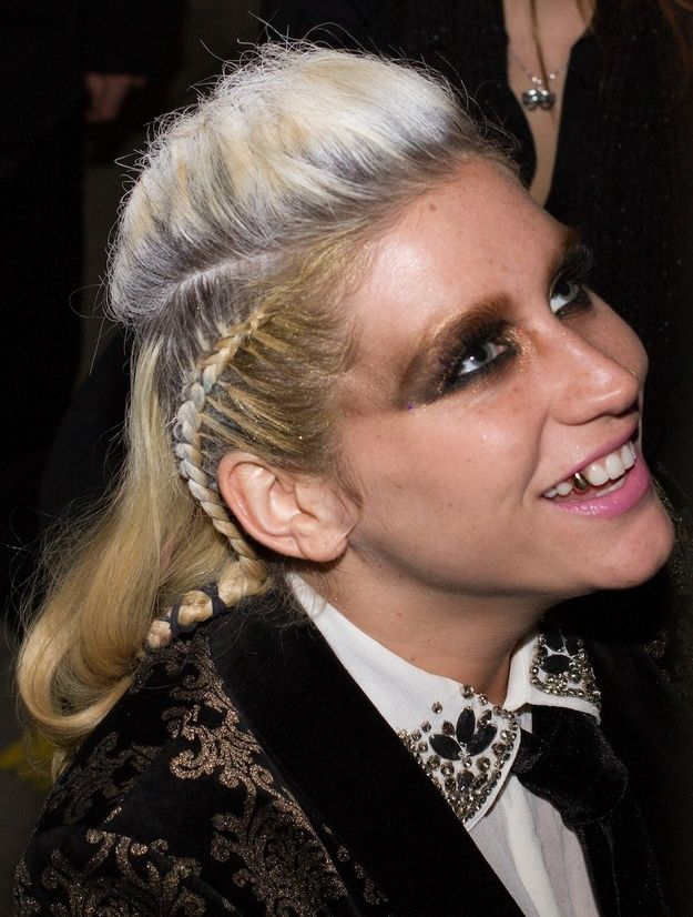 Ke$ha with a Half-White Hair and a Gold Tooth (2 pics)