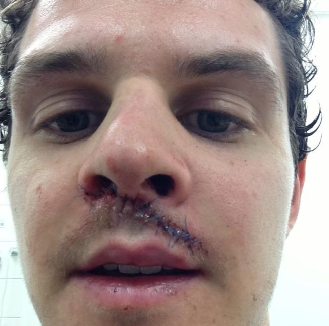 Hit by a Puck (5 pics)