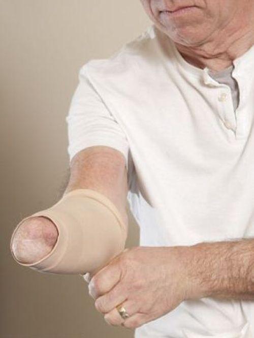 Bionic Arm (10 pics)
