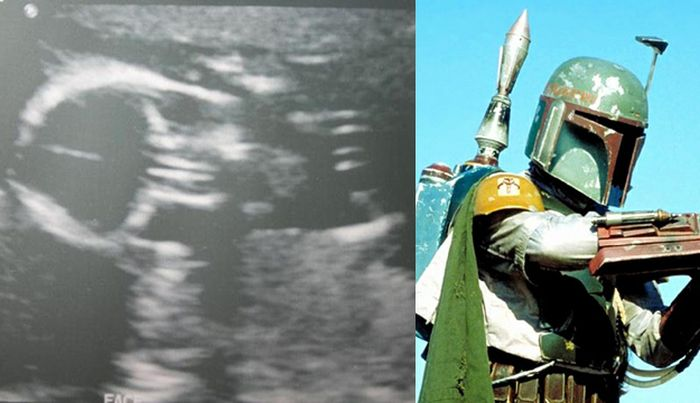 Babies in Ultrasound Who Look Like Fictional Characters. Part 2 (10 pics)