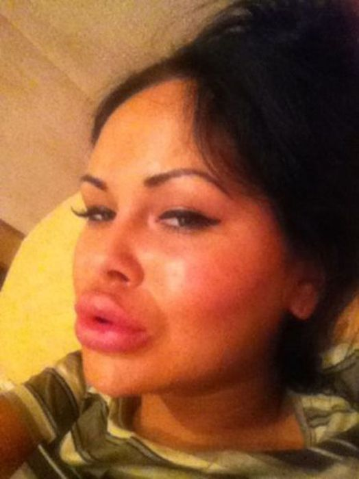 Girls With Silicone Lips. Part 3 (75 pics)