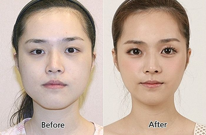 Korean Plastic Surgery (31 pics)
