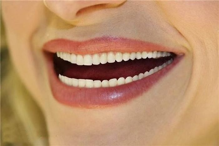 Image result for smile with too many teeth