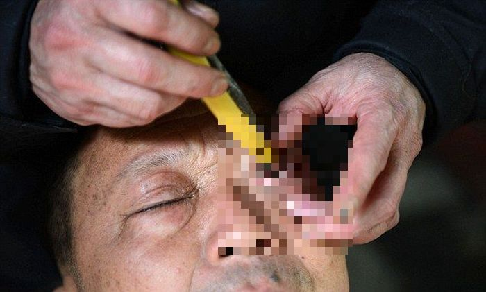 Eye Shaving (4 pics)