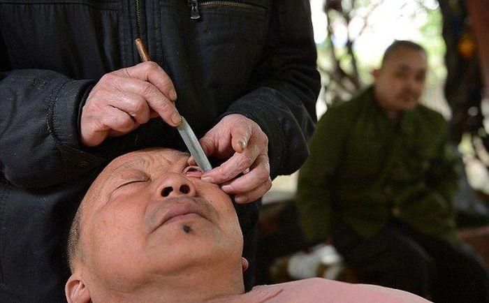 Eye Shaving (4 pics)