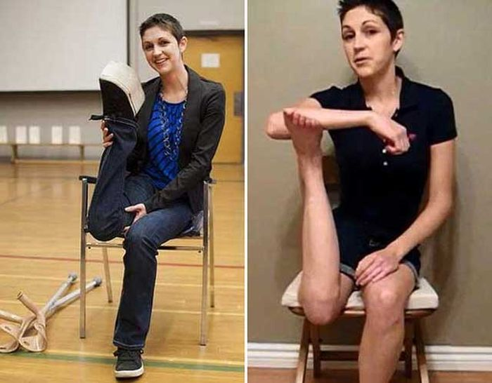 Woman Can Rotate Her Leg 180 Degrees (2 pics + video)