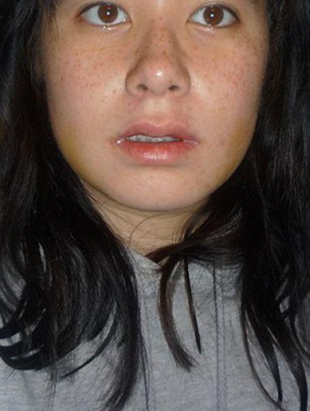 Face Surgery (16 pics)