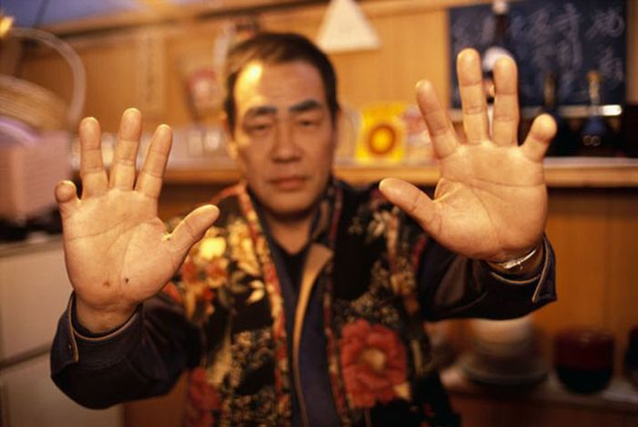 Prosthetic Pinkies for the Yakuza (5 pics)