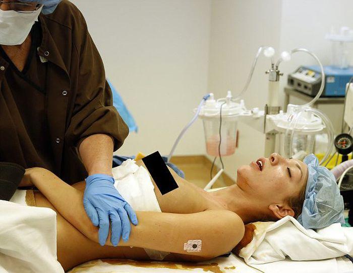 Breast Enlargement. How It's Done (20 pics)