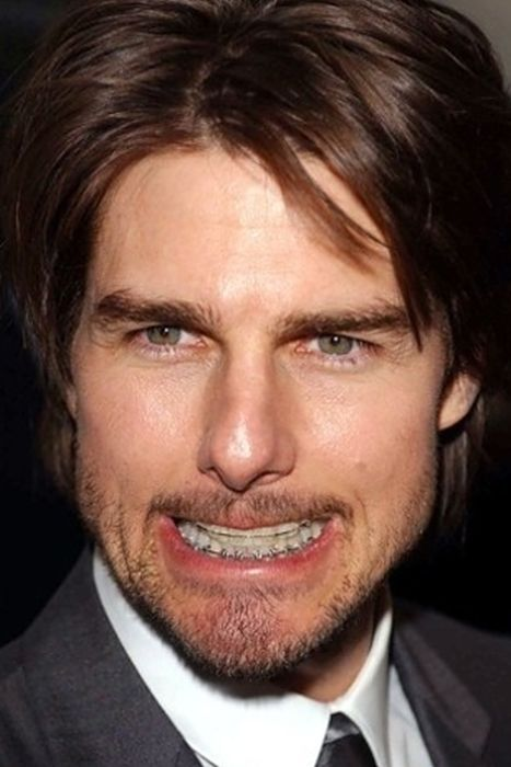 Celebrities Wearing Braces (33 pics)