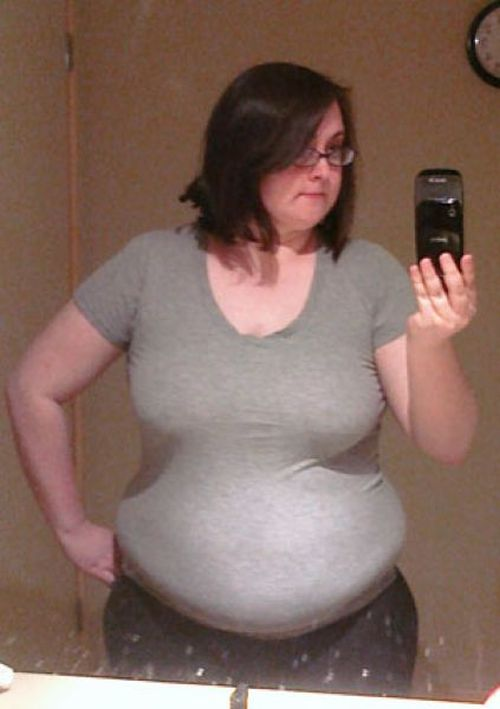 Weight Loss Success Story (6 pics)