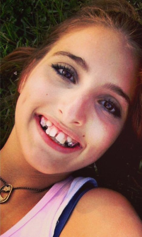 Girl Gets a New Smile (2 pics)