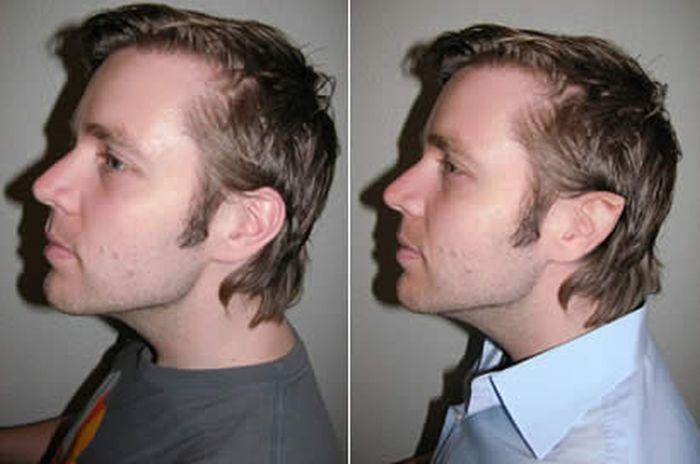 Bizarre Plastic Surgery Procedures (14 pics)