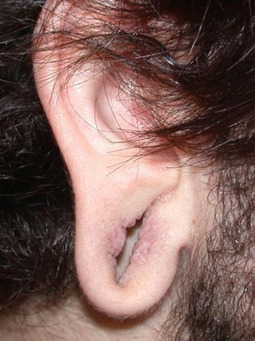 Gauged Ears Without The Gauges In (10 pics)