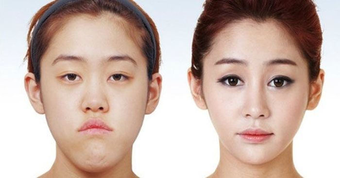 Korean Plastic Surgery. Part 2 (61 pics)