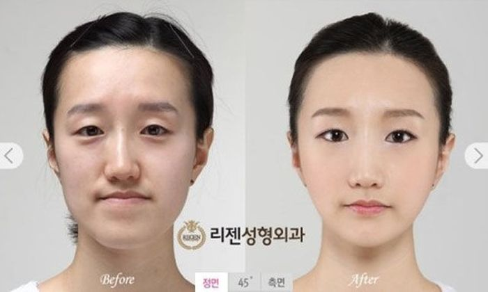 Korean Plastic Surgery. Part 2 (61 pics)