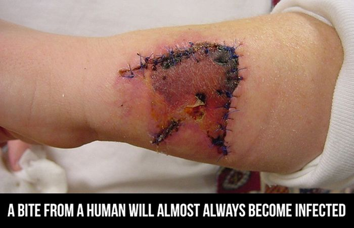 Facts About The Human Body (24 pics)