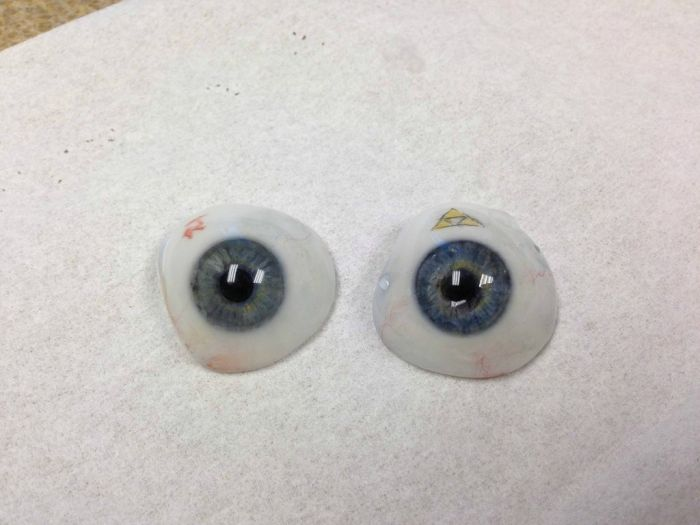 The Making of an Eye Prosthesis (11 pics)
