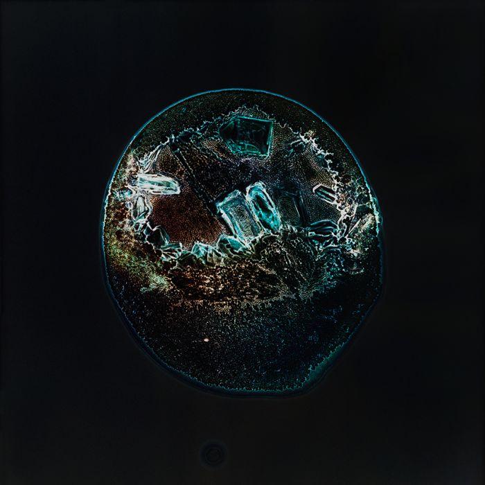Drugs Under the Microscope (14 pics)