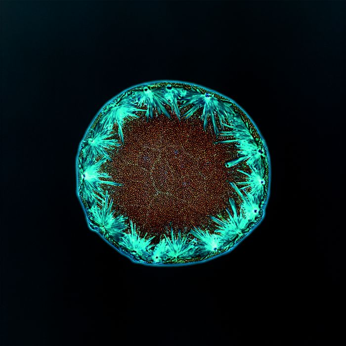Drugs Under the Microscope (14 pics)