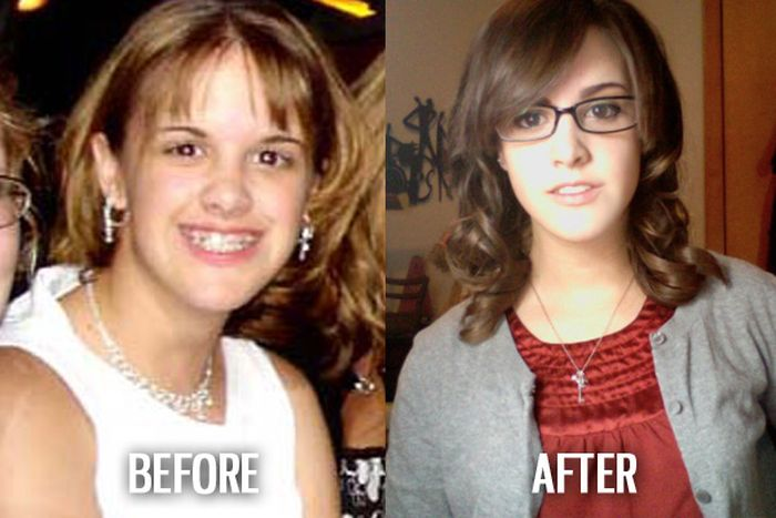 Ugly Duckling Syndrome (55 pics)