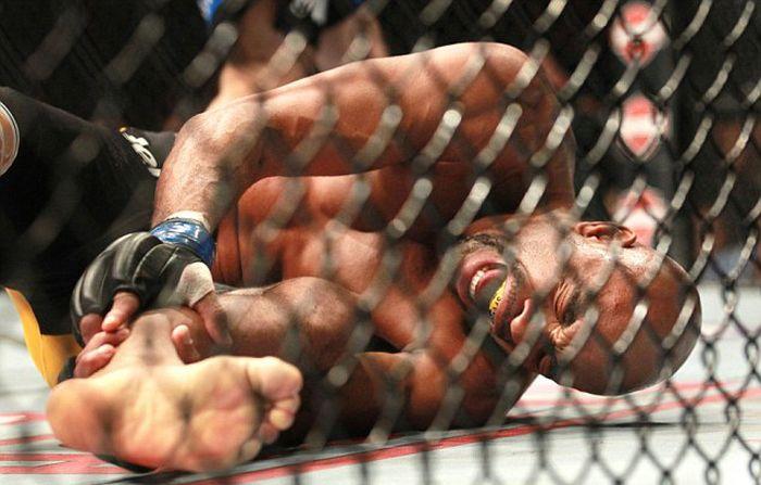 Anderson Silva Breaks Leg (11 pics)