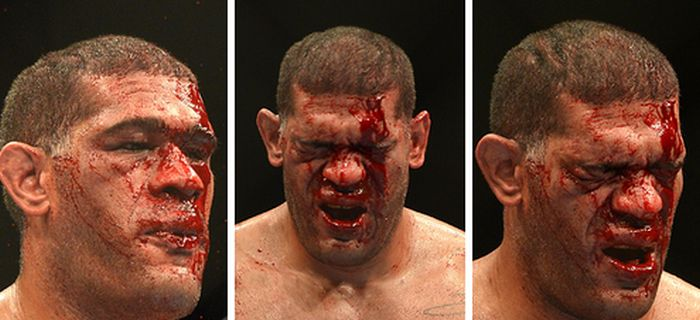 MMA Is Dangerous (23 pics)