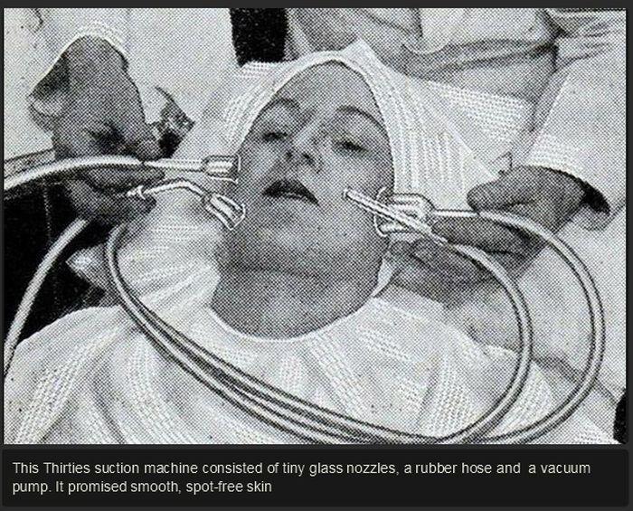 Beauty Procedures in 1930s-40s (14 pics)